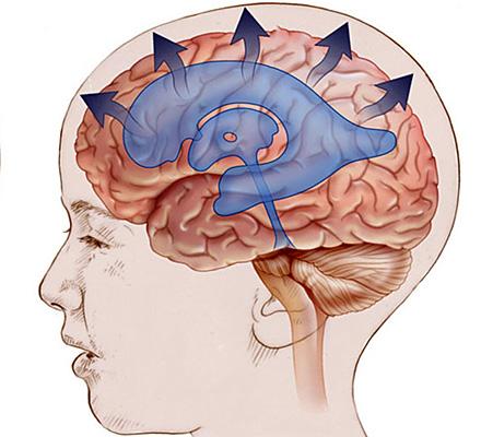 Долихоцефалическая форма головы: норма и патологии