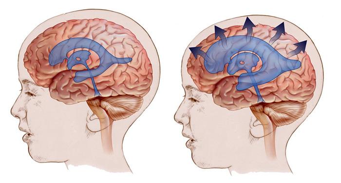 Гидроцефалия и гидроцефальный синдром