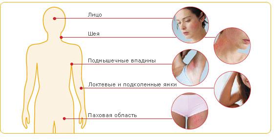 Как работать с атопическим дерматитом thumbnail