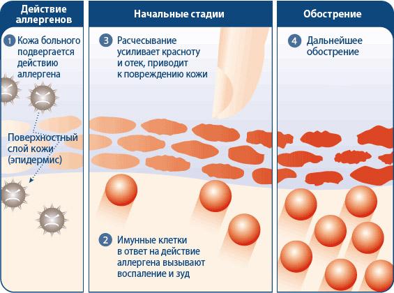 Как работать с атопическим дерматитом