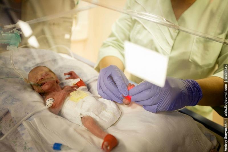 Недоношенный новорожденный как за ним ухаживать