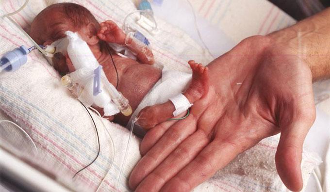 фото ребёнка на 26 неделе беременности